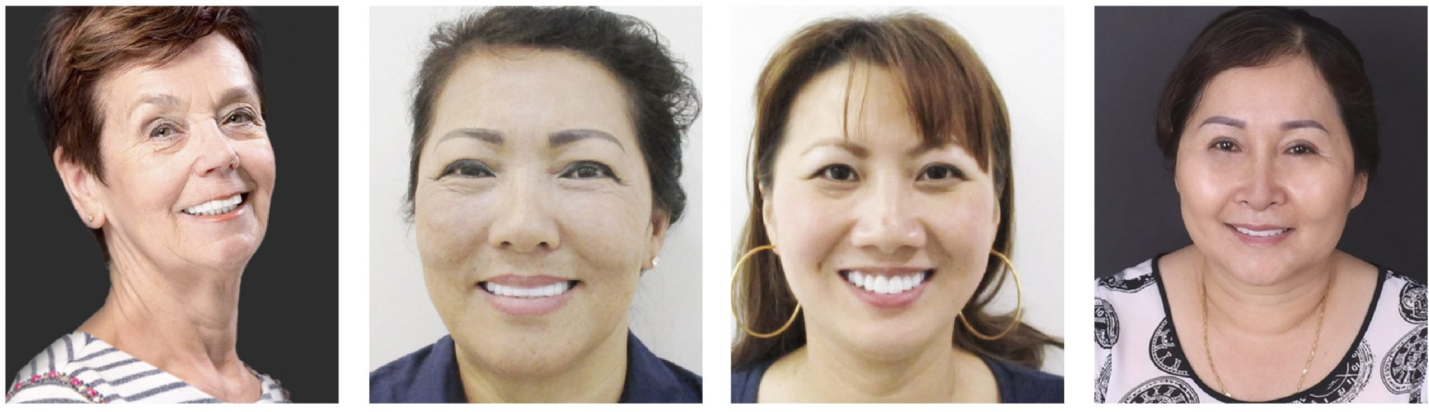 Khách hàng trồng răng implant