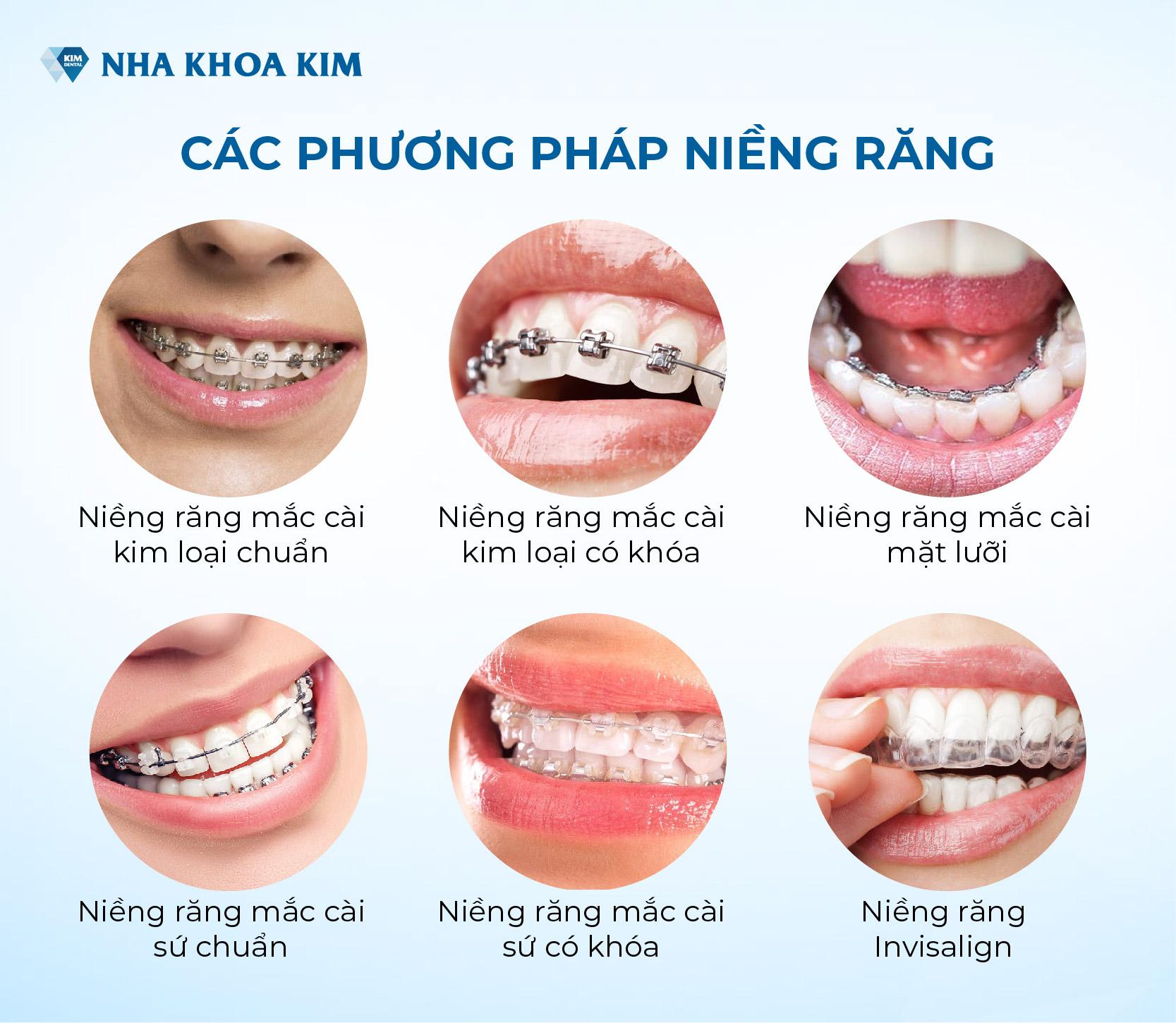 các phương pháp niềng răng - Nha Khoa Kim