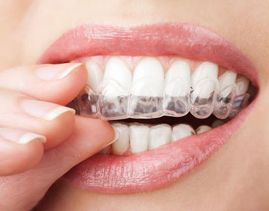 Top 04 phương pháp niềng răng được yêu thích hiện nay