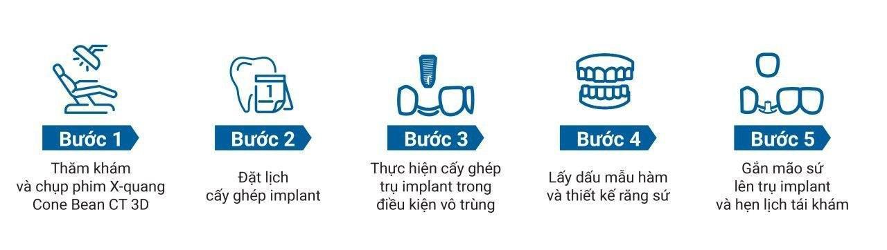Quy trình trồng răng Implant chuẩn quốc tế tại Nha Khoa Nụ Cười Duyên