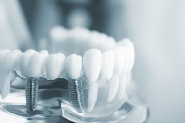 Gói trồng răng Implant