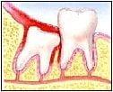Răng cối thứ ba (răng khôn) bị lèn trong mô mềm.